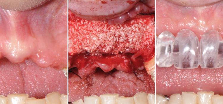 Rigenerazione protesicamente guidata